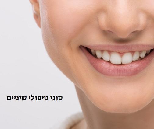סוגי טיפולי שיניים בשיקום הפה
